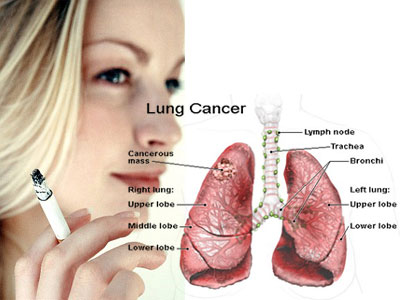 Lung-Cancer-in-Women