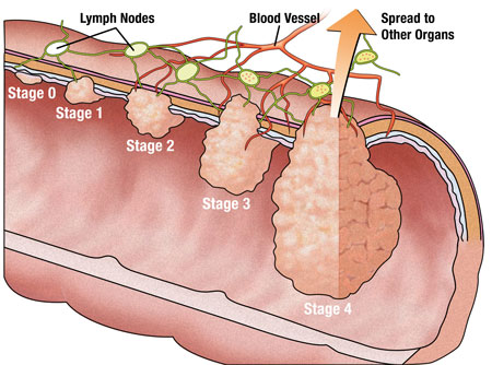 colon-cancer-stage
