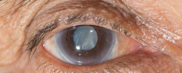 eye-cataract_1024